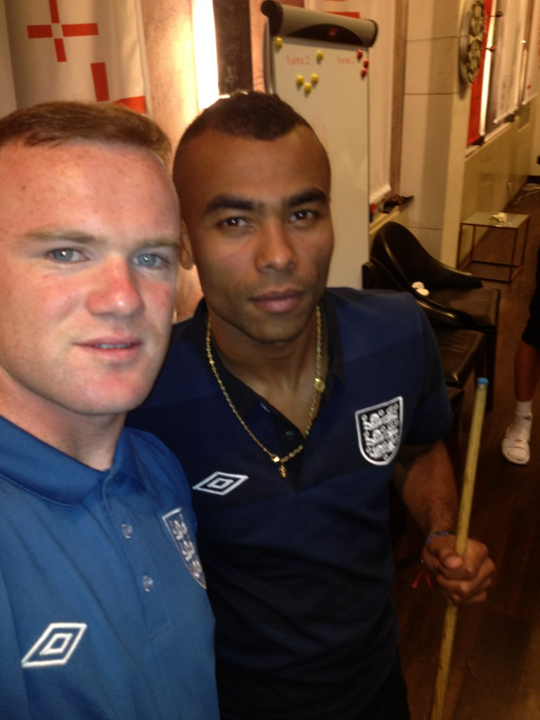 Wayne Rooney with his failed hair transplant in June 2012