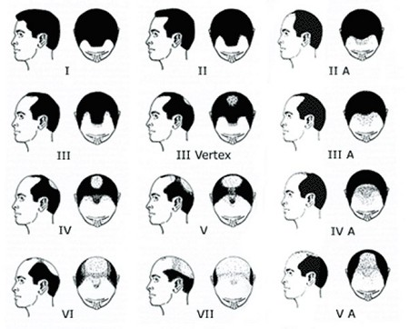 The Norwood scale showing all the stages of male pattern baldness and which to treat with minoxidil.